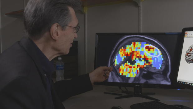 Dr. Marcel Just with an fMRI brain scan.